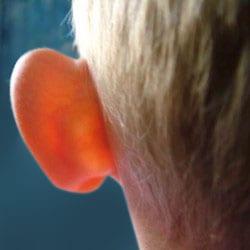 Ear Pinning / Ear Stitch