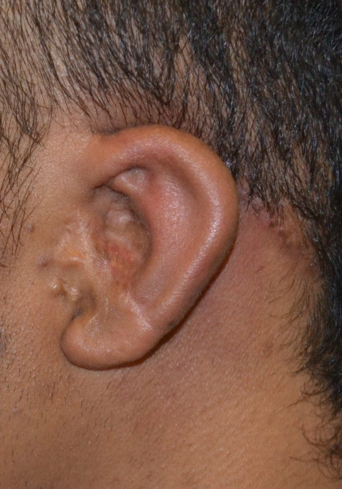After Microtia After Operation