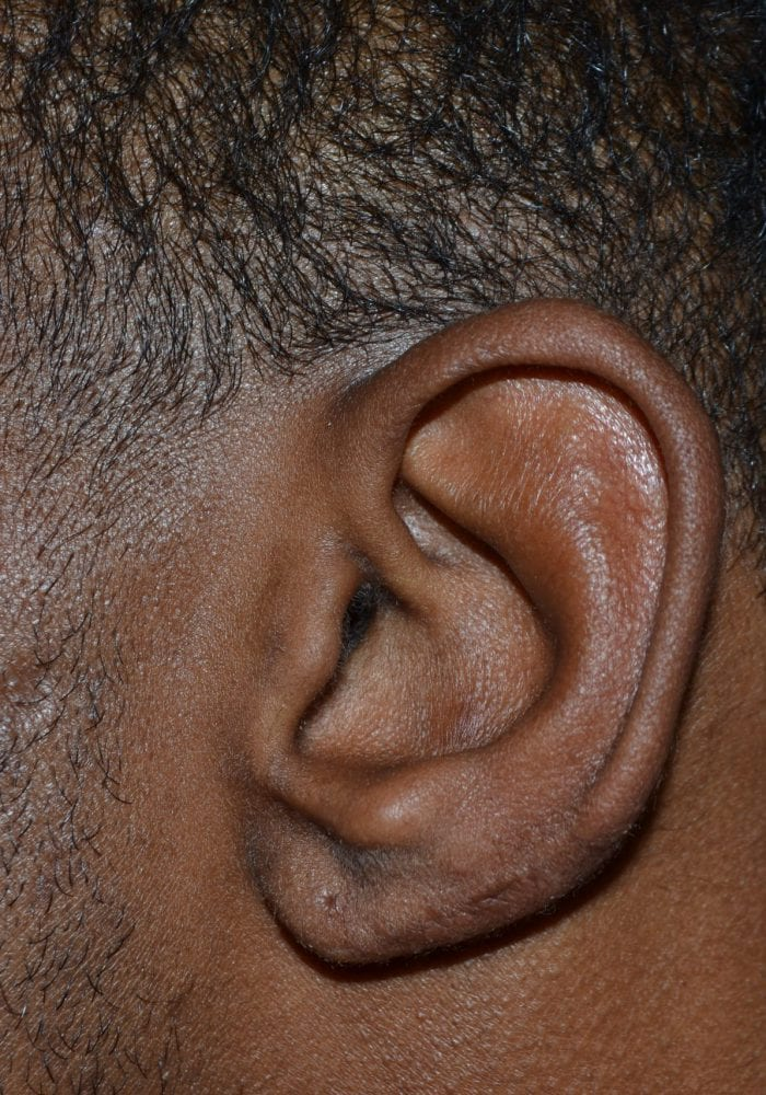 After Keloid