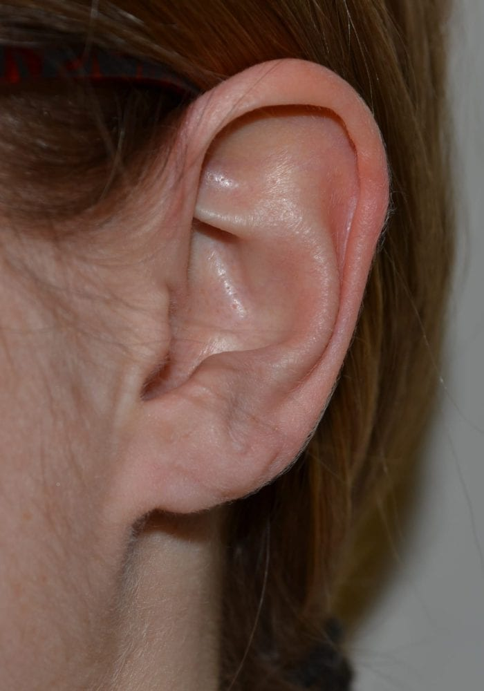 After Cleft Ear Lobe