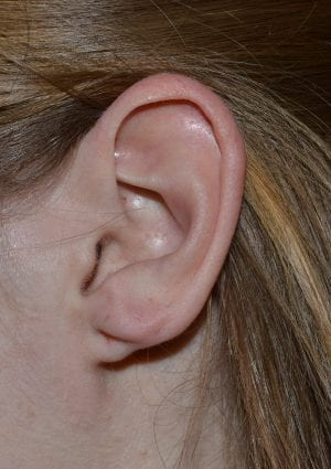 Before Cleft Ear Lobe