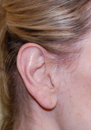 Before Ear Lobe Reduction