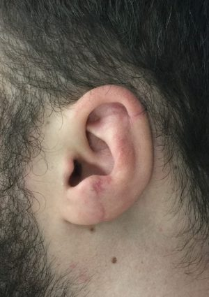 After Traumatic Ear Loss