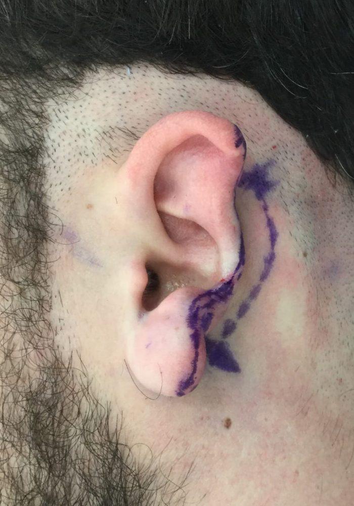 Before Traumatic Ear Loss