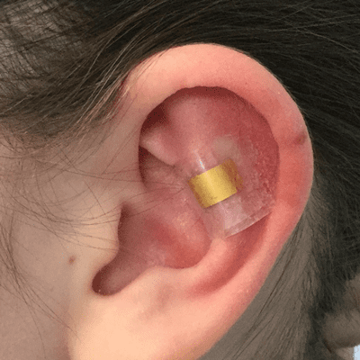Ear Fold